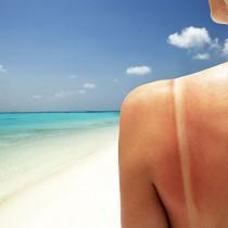 Sunburn-skin-remedy
